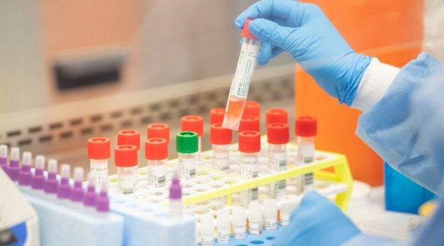 Korona virüsten 41 kişi hayatını kaybetti